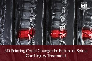 3D Printing Could Change the Future of Spinal Cord Injury Treatment